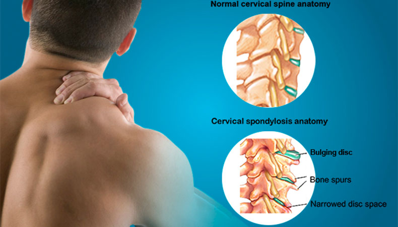 cervical-spondylosis
