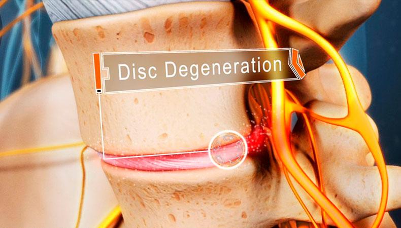 disc-degeneration
